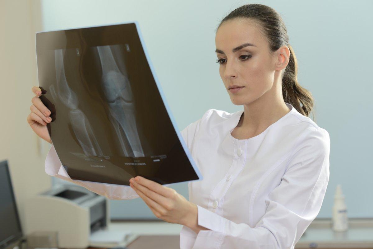 レントゲンを視る女性の医者